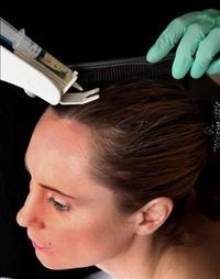 חדש: מזותרפיה לטיפול בנשירת השיער