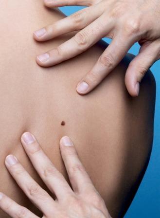 הקמפיין לגילוי מוקדם של סרטן העור,  הושק ע