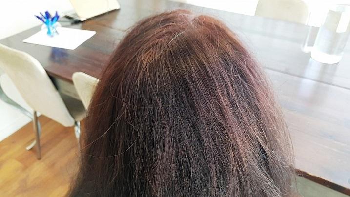 התכשיר  Hair Upשל 'המכון לשיפור שיער' - מסתמן כפיתרון