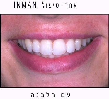 לבן גם בשיניים
